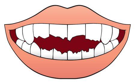 Une bouche pleine de dents mal cassées Vecteurs