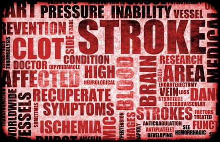 blood clot: Stroke Medical Concept of Early Warning Signs