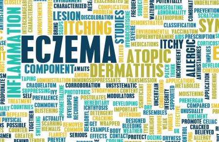 Eczema Skin Condition Treatment as a Concept Stock Photo