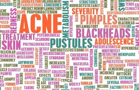 pubertad: Problema de acn� y concepto de tratamiento como arte Foto de archivo