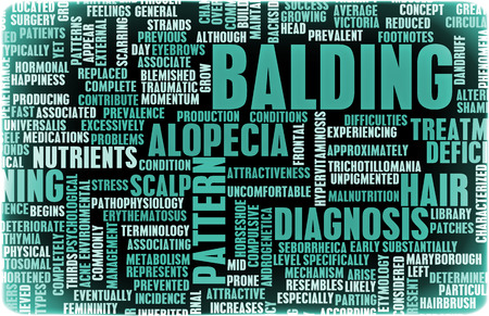 balding: Balding and Hairloss as a Medical Treatment Condition Stock Photo