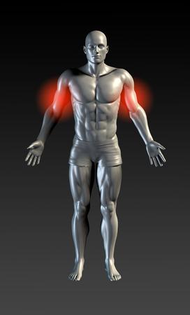 rheumatoid: Bicep Injury with Red Glow on Area Series