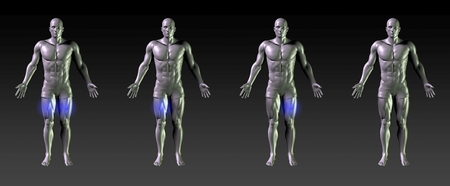 common target: Thigh Recovery or Rehabilitation with Blue Glow