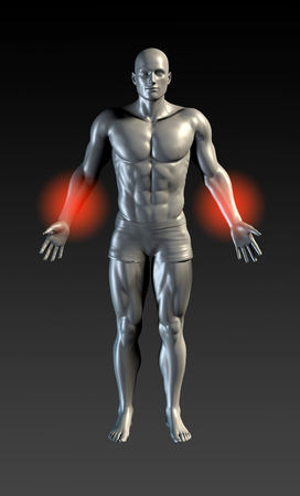 forearms: Forearm Injury with Red Glow on Area Series