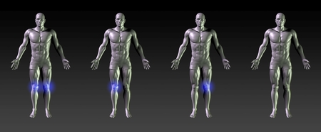 common target: Knee Recovery or Rehabilitation with Blue Glow