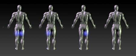 hamstring: Hamstring Recovery or Rehabilitation with Blue Glow