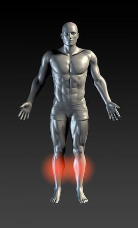 splint: Calambres en las piernas, con luz roja en la Serie Área Foto de archivo
