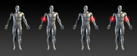 elbows: Elbows Injury with Red Glow on Area Series