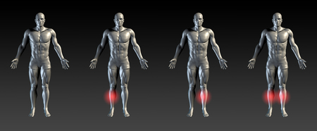 shin: Shin Splints with Red Glow on Area Series