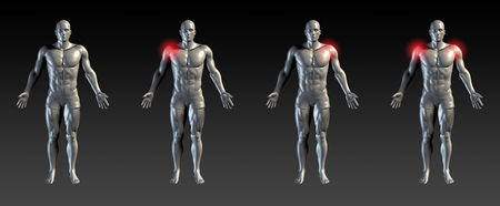 deltoids: Shoulder Injury with Red Glow on Area Series