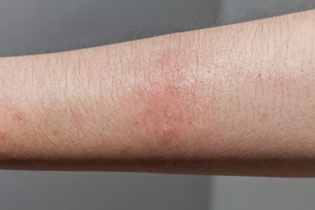 dog bite: Dog bite wound and scar in close up with dark background