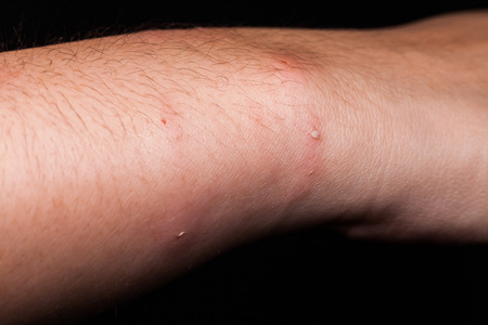 scar: Dog bite wound and scar in close up with dark background