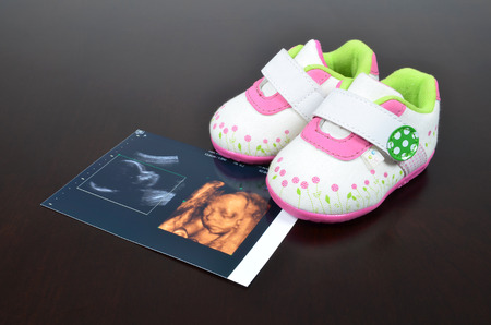 baby shoe: Baby shoe with ultrasound images