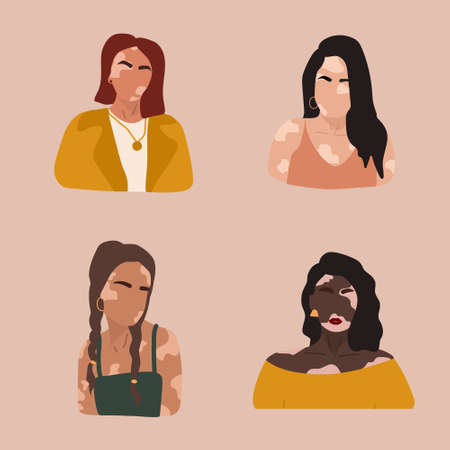 Abstract women silhouettes with vitiligo of different nationalities. Vector concept to support people living with vitiligo and to build awareness about chronic skin disorder. Self care and self love. Ilustração