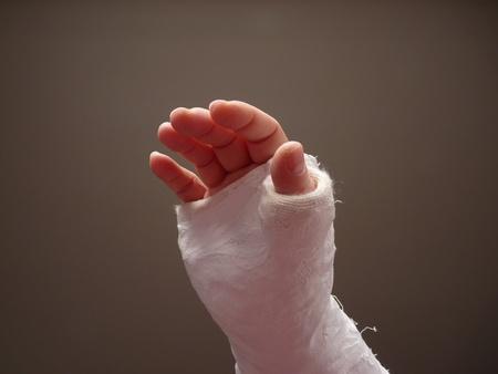 broken arm: Injured hand with cast