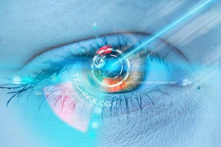 Concept of contact lens laser operation