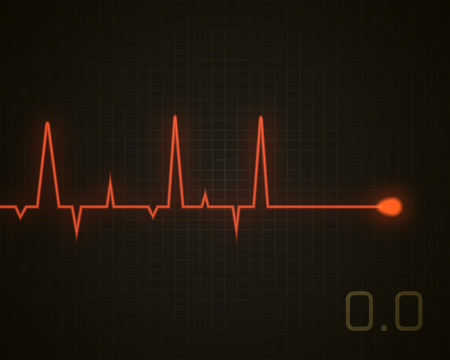 Heart beat dead graphic. Vector heart pulse isolated on black. Medical background.
