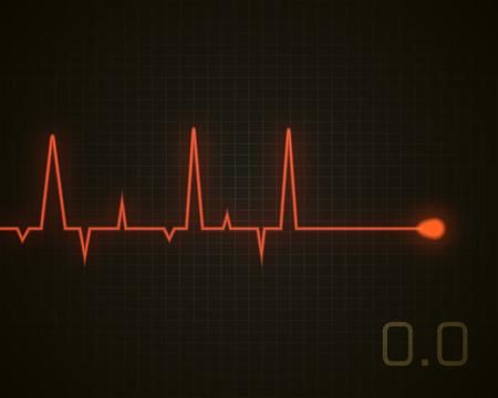 Serce bije martwe. Wektor serca impuls odizolowane na czarno. Medycyna tło.