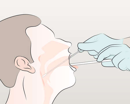 step 4 : For throat swab, take a second dry polyester swab, insert into mouth, and swab the posterior pharynx and tonsillar areas. (Avoid the tongue).