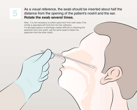 Step 5 : As a visual reference, the swab should be inserted about half the distance from the opening of the patient's nostril and the ear. Rotate the swab several times.