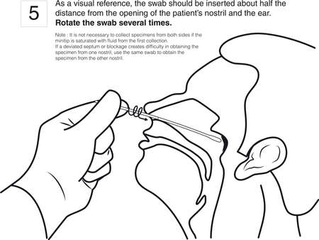 Step 5 : As a visual reference, the swab should be inserted about half the distance from the opening of the patient's nostril and the ear. Rotate the swab several times. line drawing 일러스트