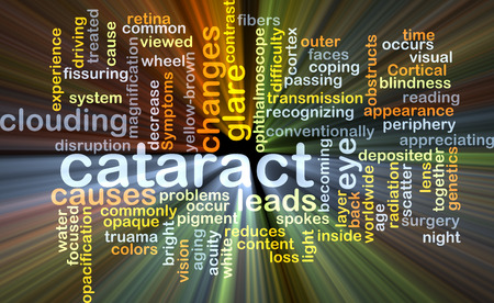 cortical: Background concept wordcloud illustration of cataract