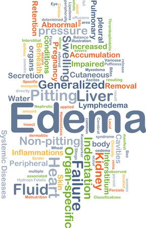 Background concept wordcloud illustration of edema