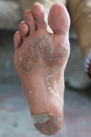 bad condition: Peel the feet of women who are in bad condition.