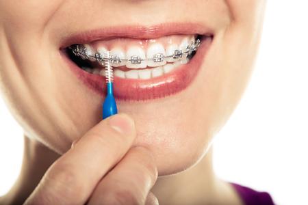 de higiene: Bella joven sonriente con retenedor para los dientes cepillarse los dientes sobre un fondo blanco.