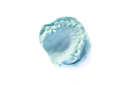 plaster of paris: dental impression model on white background - isolated