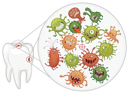 dirty teeth: Caries. Funny bacteria and tooth. Vector illustration. Isolated on white background