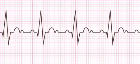 Cardiac cycle. Heart beat cardiogram line. Vector illustration eps10. Illustration
