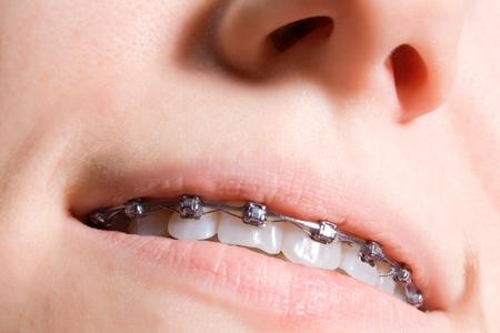 crooked teeth: close up bracers