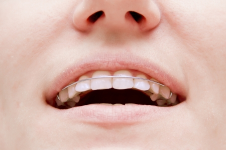 the girl smiling with braces on teeth photo