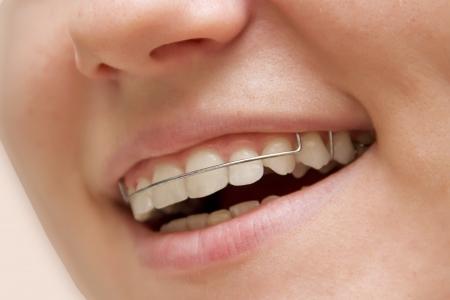ortodoncia: la chica sonriente con las paréntesis en los dientes Foto de archivo