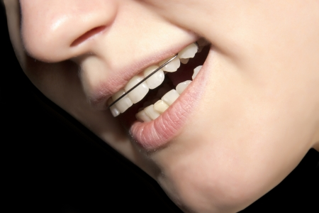 bracket: the girl smiling with braces on teeth Stock Photo