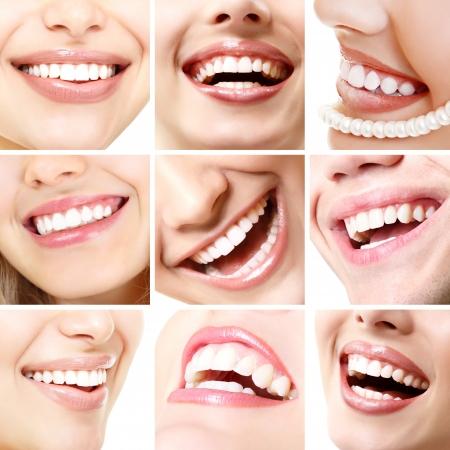 Sonrisas perfectas. Colección de la hermosa sonrisa amplia humana con grandes dientes blancos y sanos. Conjunto aislado sobre fondo blanco
