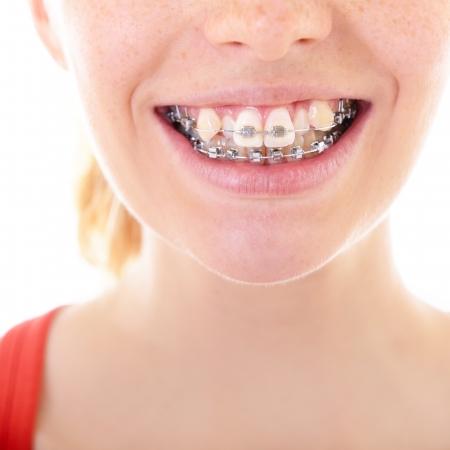 appareil dentaire: dents avec des accolades, de la bouche féminine avec des supports de gros