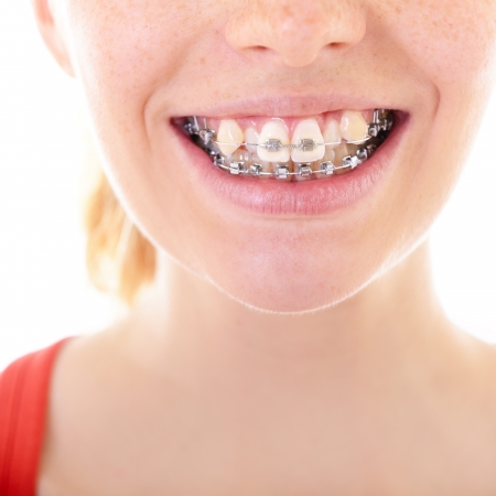 crooked teeth: teeth with braces, female mouth with brackets closeup