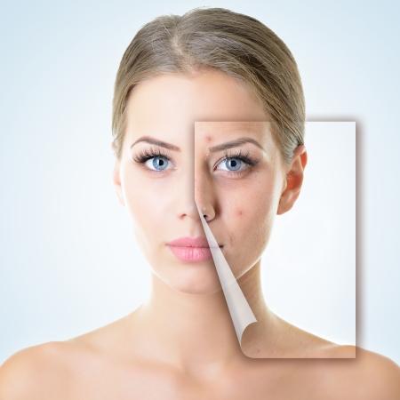 ansikts: porträtt av vacker kvinna med problem och ren hud, åldrande och ungdomskoncept, skönhetsbehandling