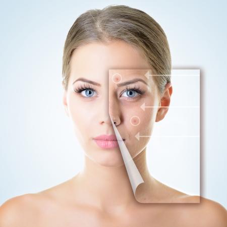 piel: Retrato de una hermosa mujer con un problema y el concepto limpia la piel, el envejecimiento y la juventud, tratamientos de belleza