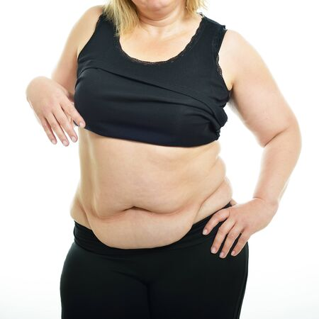 Overweight middle-aged woman shows belly fat, isolated over white background. Overeating xxl size girl dressed in swimsuit unhappy with her figure and overweight
