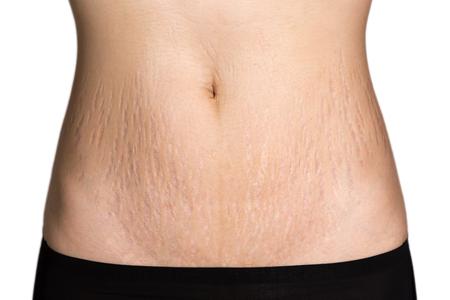 Bauchmuster fetten Bauch Frau