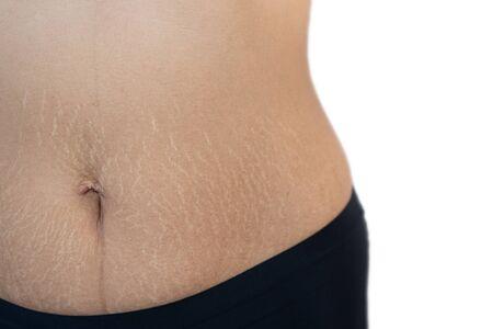 Fat belly scratch mark pregnancy female Skin