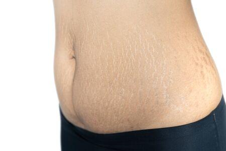 Fetter Bauch Kratzspuren Schwangerschaft weibliche Haut