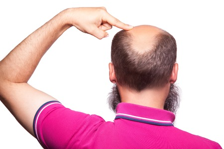 man alopecia baldness hair loss isolated. showing baldness with finger. studio shot. isolated on white. Stock Photo