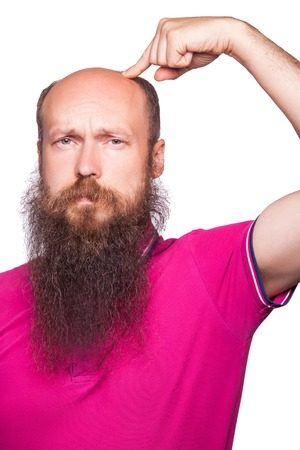 man alopecia baldness hair loss isolated. unhappy man showing baldness with finger. studio shot. isolated on white. Stock Photo