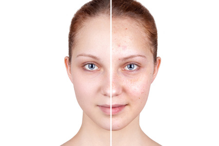 Beautiful woman's portrait isolated on white background, before and after retouch, skin care. Stock Photo