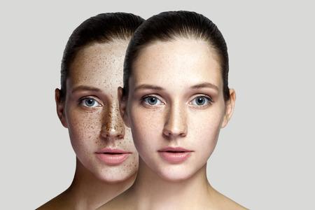 Gros plan avant et après le portrait d'une belle femme brune après un traitement au laser enlevant les taches de rousseur sur le visage en regardant la caméra. maquillage ou cosmétologie. tourné en studio intérieur, isolé sur fond gris.