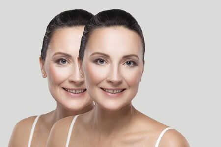 Before and after beauty skin wrinkles treatment procedure. Middle aged brunette woman looking, toothy smile. plastic surgery, cosmetic procedure concept. indoor studio shot, isolated, gray background
